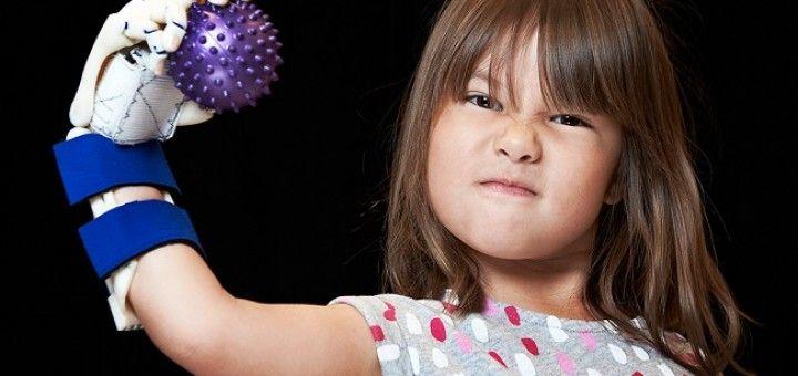 hailey mano3d 720x340 - Vídeo del día: Una niña de 5 años lanza con su mano robótica impresa en 3D
