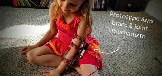 protesis1 520x245 - Construye una prótesis de rehabilitación con Impresión 3D y Arduino