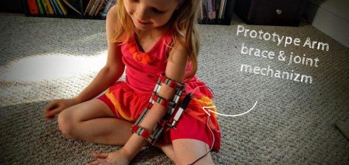 protesis1 720x340 - Construye una prótesis de rehabilitación con Impresión 3D y Arduino