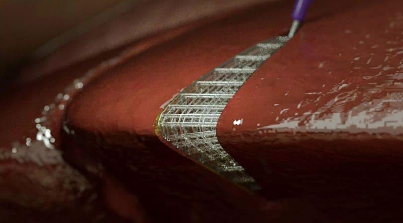 biotinta impresion 3d - La nueva bio-tinta podría usarse para imprimir en 3D partes del cuerpo dentro del paciente