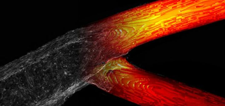 El análisis computarizado llevado a cabo en el LLNL reveló un patrón en el que las células cancerosas se reunían en la estructura vascular impresa en 3D
